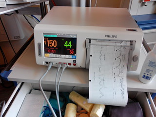 Monitoring Philips
