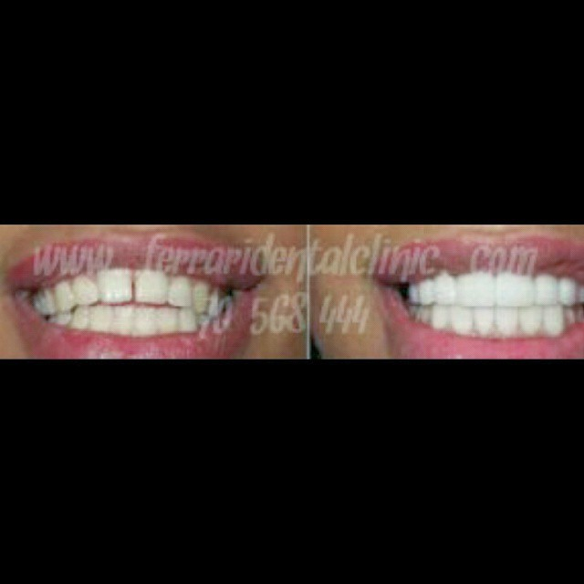 The fact is many options of veneers, Lumineers, Davinci