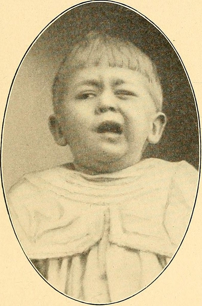 Image from page 178 of Modern diagnosis and treatment of diseases of childern; a treatise on the medical and surgical diseases of infancy anf childhood (1911)