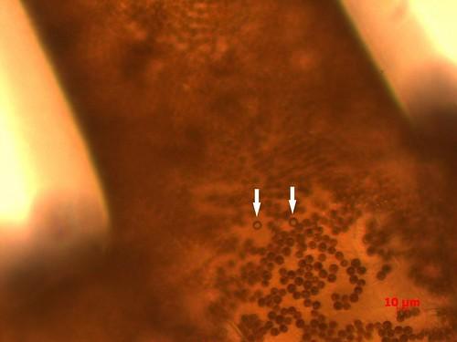 海葵體內的塑膠微粒(透明圓球),其他紅棕色圓球為海葵體內的共生藻。(中央研究院湯森林副研究員實驗室 楊姍樺提供)