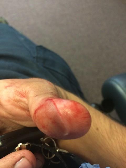 andrew thumb