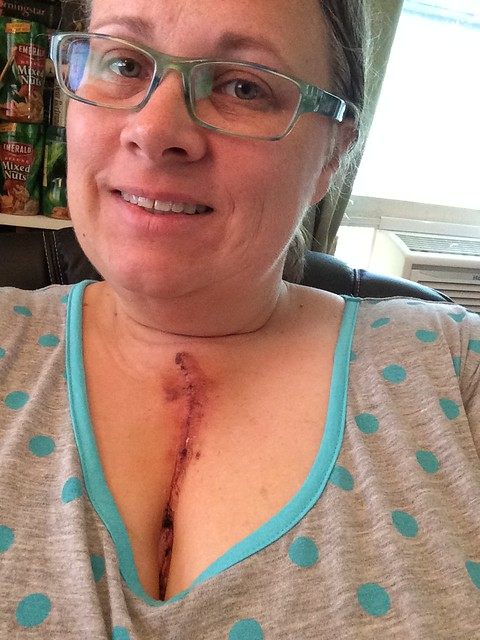 Surgical Incision. Pretty, right?