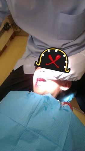 豐美牙醫診所-兒童牙齒衛教+塗氟33