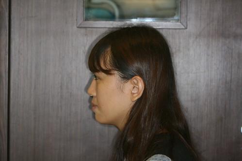 台中黃經理牙醫診所賴怡妏醫師牙齒矯正15