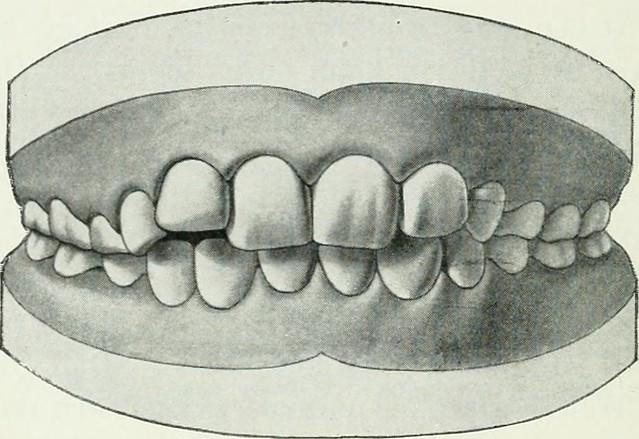 """Image from page 133 of """"Lehrbuch der orthodontie fur studierende und zahnartze mit enschluss der geschichte der orthodontie"""" (1906)"""