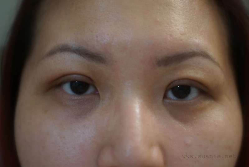Suanie double eyelid surgery - Day 18_01