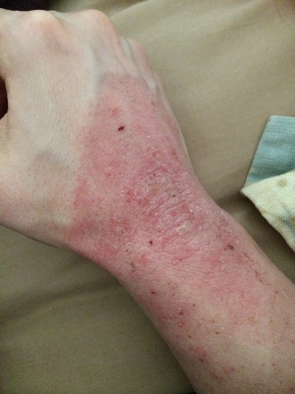 topical steroid eczema face