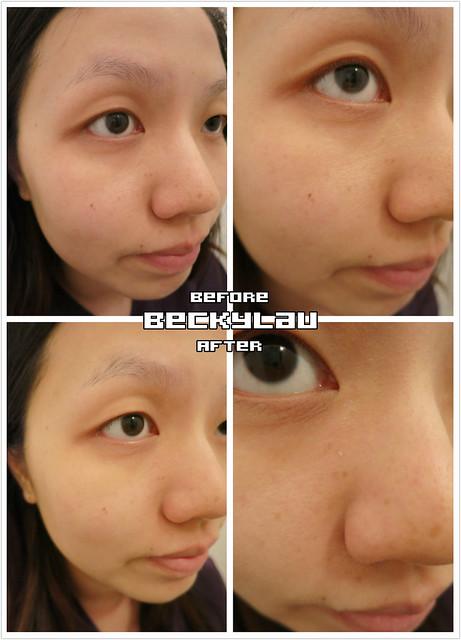 GLAMOUR X Shining facial ll 療程 - 13