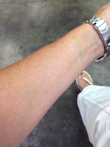 Quinn's wrist - before