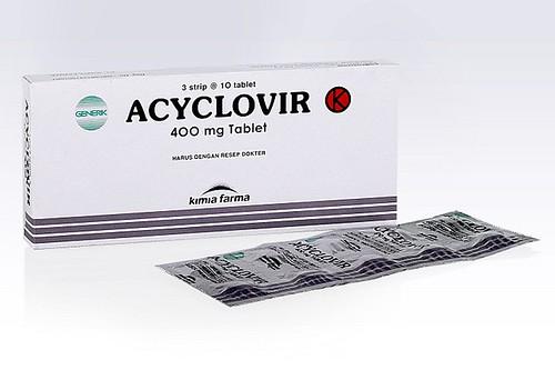 asiklovir