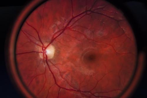 Shortsighted - 03