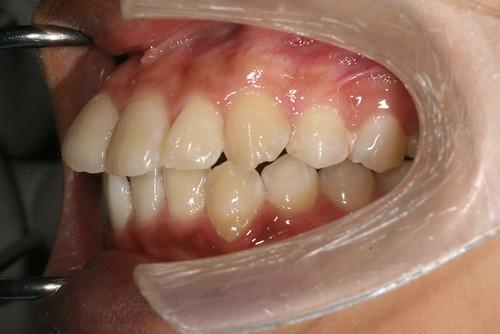 台中黃經理牙醫診所賴怡妏醫師牙齒矯正11