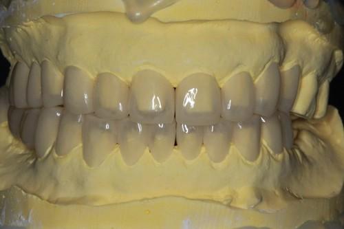 台中黃經理牙醫診所-氧化鋯全瓷冠假牙植牙重建 (5)