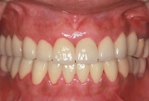 台中黃經理牙醫診所-氧化鋯全瓷冠假牙植牙重建 (12)