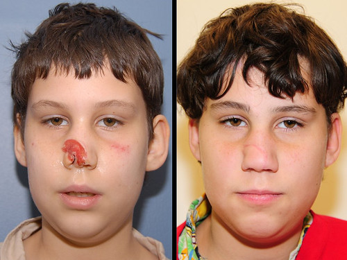 11 year old male who had lost part of his nose from an animal bite. The missing tissue was reconstructed with 3 surgeries where skin was brought over from his forehead for reconstruction. The picture on the right shows his appearance 1 year after reconstruction.  For more information on plastic surgery in children, visit www.stlouischildrens.org/our-services/plastic-surgery.