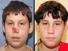 Lip Reconstruction After Dog Bite