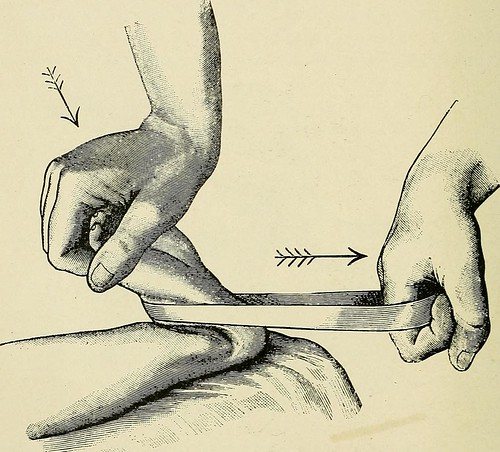 "Image from page 813 of ""A treatise on orthopedic surgery"" (1910)"