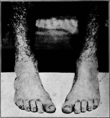 """Image from page 31 of """"A manual on foot care and shoe fitting for officers of the U.S. Navy and U.S. Marine corps"""" (1920)"""