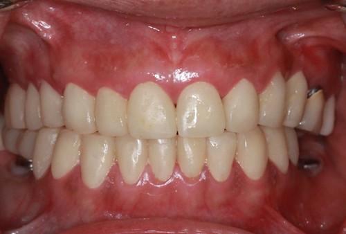 台中黃經理牙醫診所-氧化鋯全瓷冠假牙植牙重建 (6)