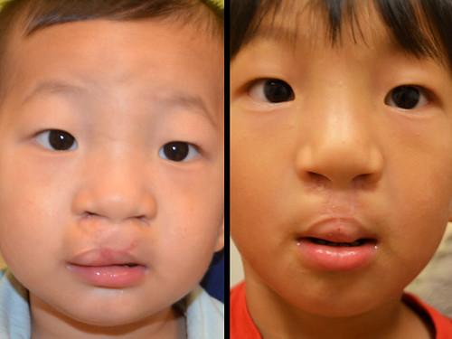 bilateral cleft lip