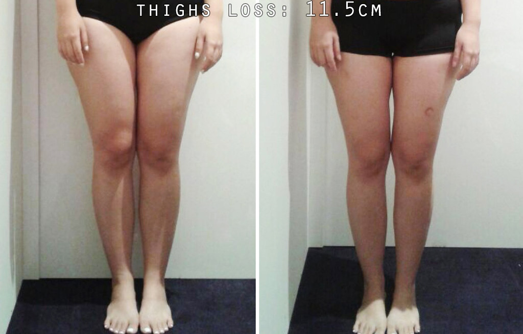 Weight loss doctors lafayette in image 2