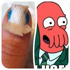 Bandages still don't want to come off but it's helping me work on my Zoidberg impression.