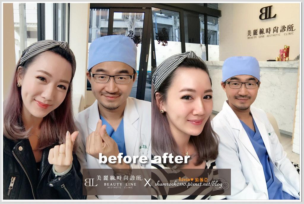美麗線時尚醫美診所 - 玻尿酸+肉毒12
