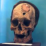 Paracas skull 2