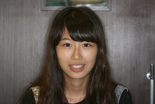 台中黃經理牙醫診所賴怡妏醫師牙齒矯正13