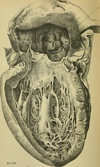"Image from page 777 of ""Diseases of the heart and thoracic aorta"" (1884)"