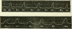 "Image from page 209 of ""Practical electricity in medicine and surgery"" (1890)"
