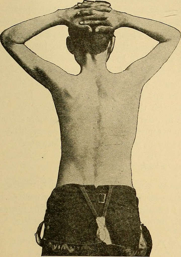 Image from page 106 of Physical diagnosis (1905)