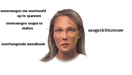 vestibular neuritis treatment steroids