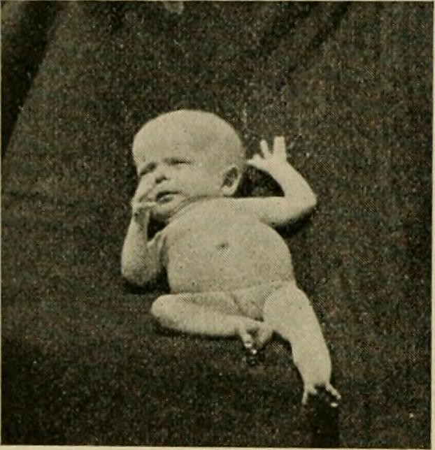 Image from page 259 of The diseases of infants and children (1919)