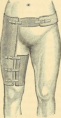 "Image from page 457 of ""The principles and practice of surgery"" (1872)"