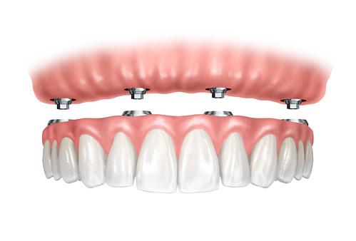台中黃經理牙以診所黃院長植牙新技術:All-on-4 (7)