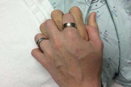 Wedding ring handoff pre-surgery