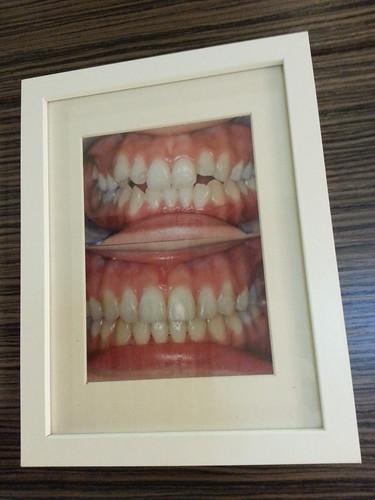 黃經理牙醫診所三樓矯正診間的成果展示照5