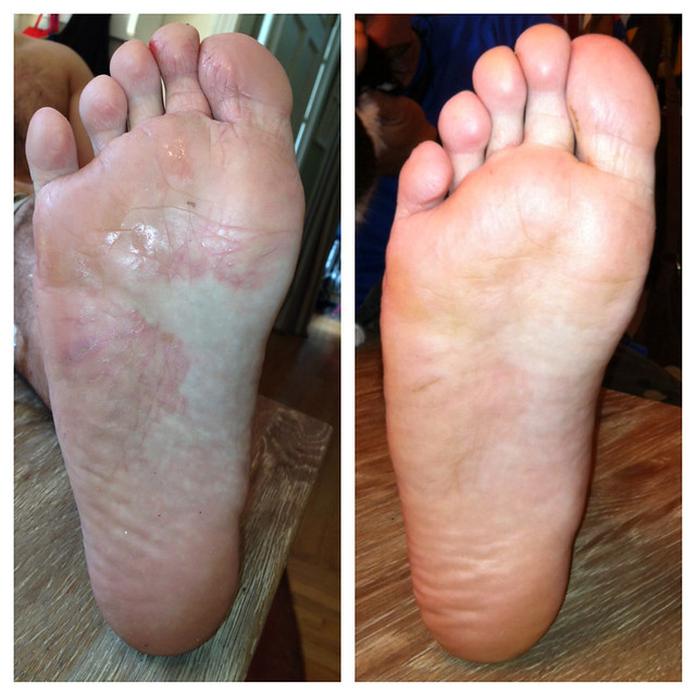 Learn how to treat Athletes foot cream using Essential Oils. This mom used a homemade salve and cured her husband Athletes foot problems in under a week.