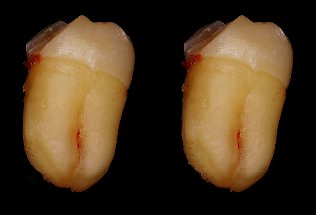 My wisdom tooth (extracted