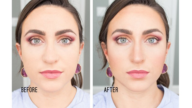 before-after-HC