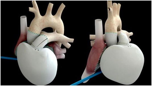 Mô hình tim nhân tạo