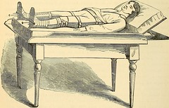 """Image from page 423 of """"The principles and practice of surgery"""" (1872)"""