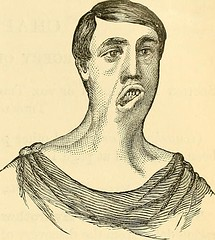 "Image from page 716 of ""The principles and practice of surgery"" (1872)"