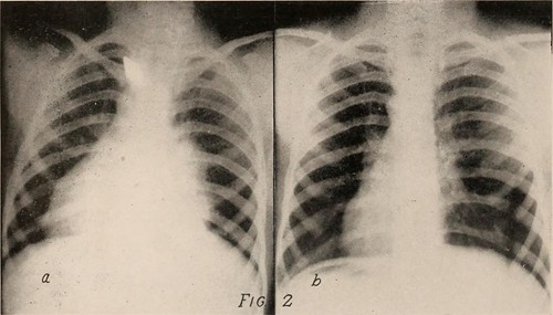"""Image from page 247 of """"Journal of radiology"""" (1922)"""