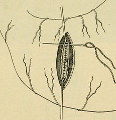 "Image from page 414 of ""Manual of operative surgery"" (1921)"