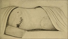 """Image from page 210 of """"Postoperative treatment; an epitome of the general management of postoperative care and treatment of surgical cases as practised by prominent American and European surgeons"""" (1907)"""