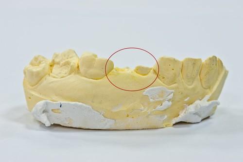 豐美牙醫診所-3D齒雕齒模5