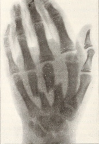 First X-Ray photo