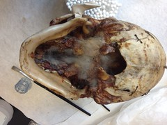 Skimmelangreb på undersiden af et kranie.